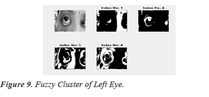 biomedres-Left-Eye