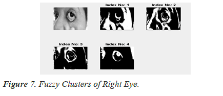 biomedres-Right-Eye