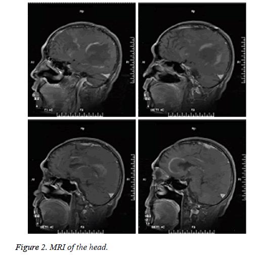 biomedical-research-MRI