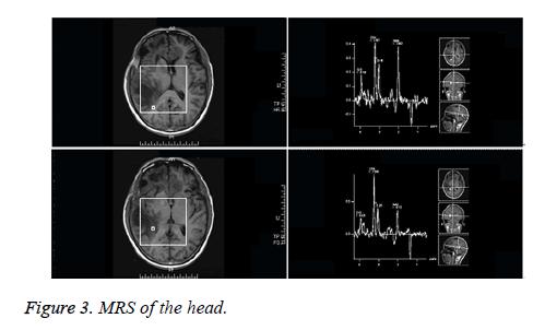 biomedical-research-MRI-head