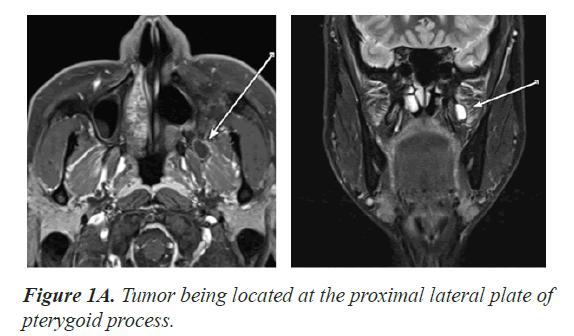 biomedical-research-Tumor