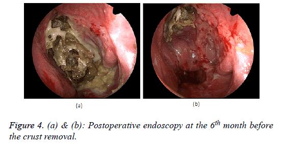 biomedical-research-endoscopy
