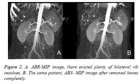 biomedres-ABR-MIP-image