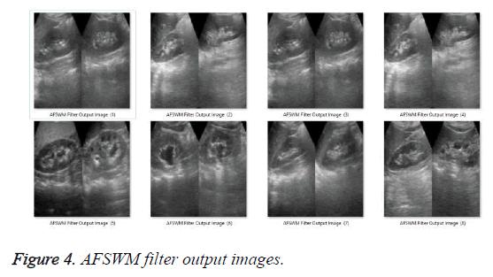 biomedres-AFSWM-filter