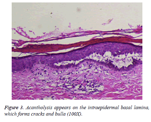 biomedres-Acantholysis-appears