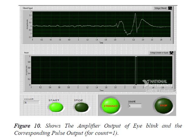 biomedres-Amplifier-Output