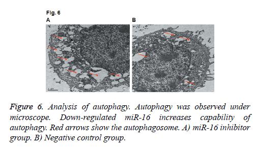 biomedres-Analysis-autophagy