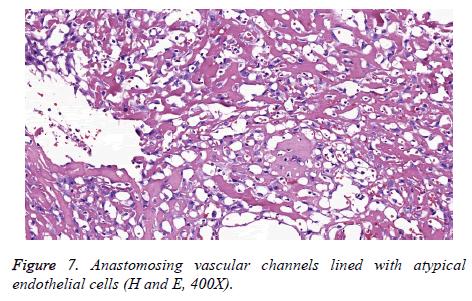 biomedres-Anastomosing-vascular