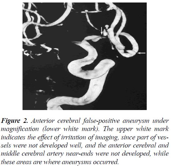biomedres-Anterior-cerebral