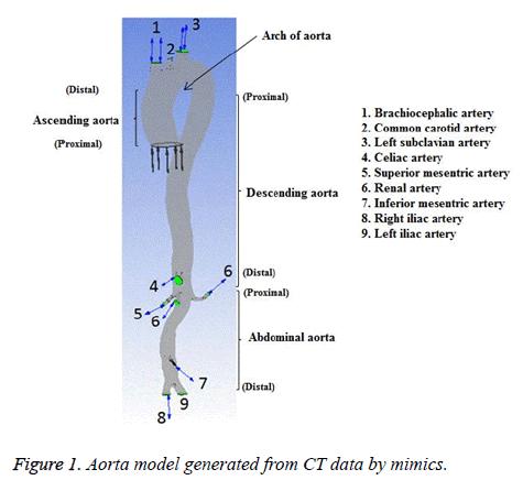 biomedres-Aorta-model