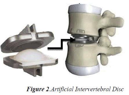 biomedres-Artificial-Intervertebral