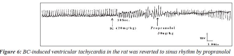 biomedres-BC-induced-ventricular-tachycardia