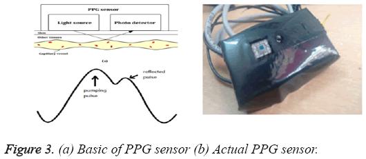 biomedres-Basic-PPG-sensor