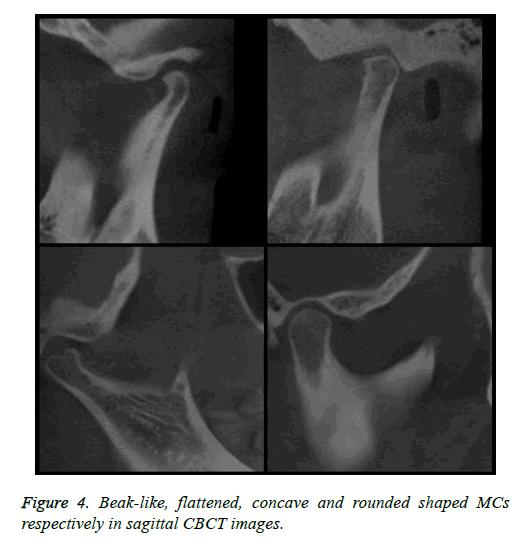 biomedres-Beak-like-concave