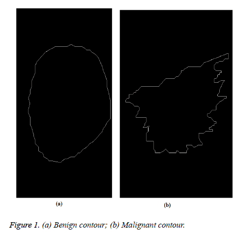 biomedres-Benign-contour