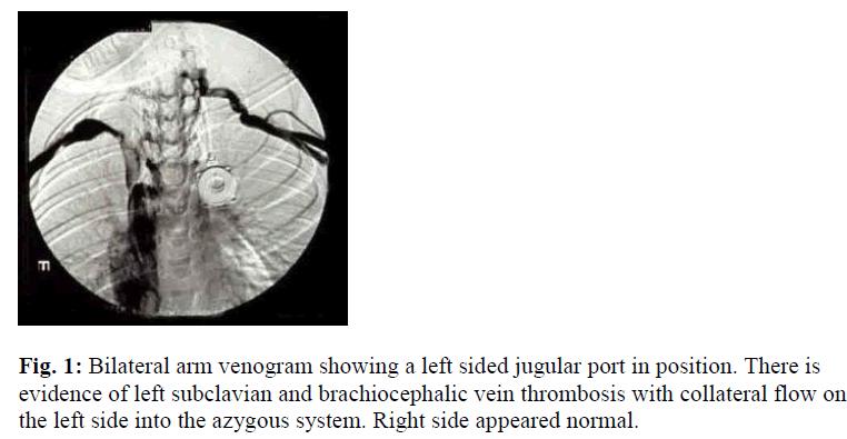biomedres-Bilateral-arm-venogram