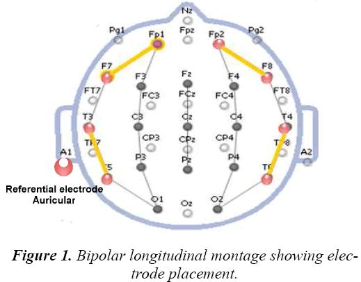 biomedres-Bipolar-longitudinal-montage
