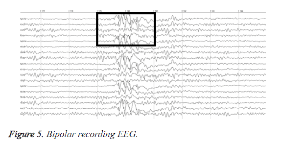 biomedres-Bipolar-recording-EEG