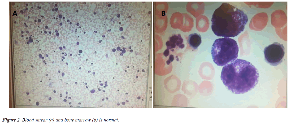 biomedres-Blood-smear-bone-marrow
