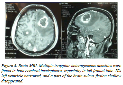 biomedres-Brain-MRI
