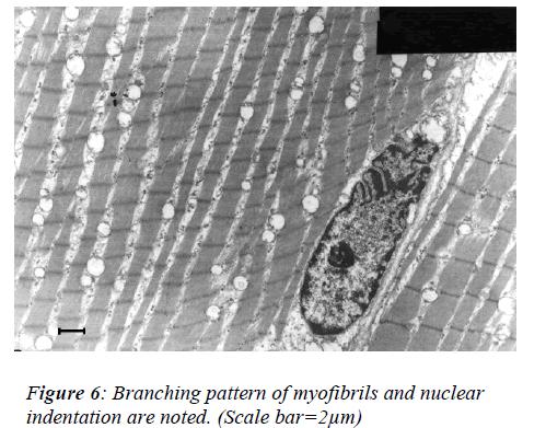 biomedres-Branching-pattern-myofibrils