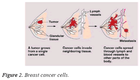 biomedres-Breast-cancer-cells