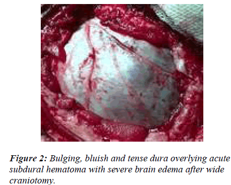 biomedres-Bulging-bluish-tense