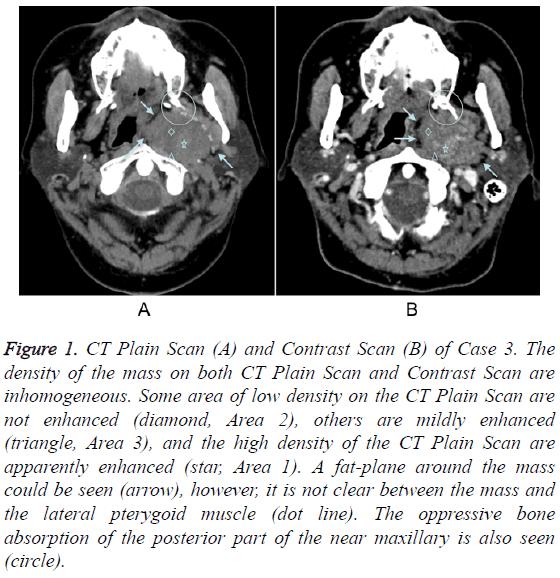 biomedres-CT-Plain-Scan