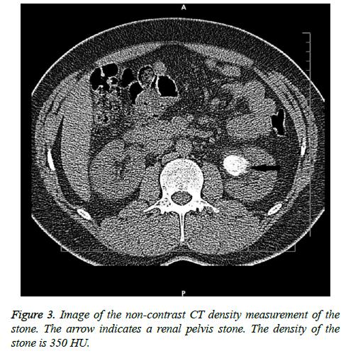 biomedres-CT-density