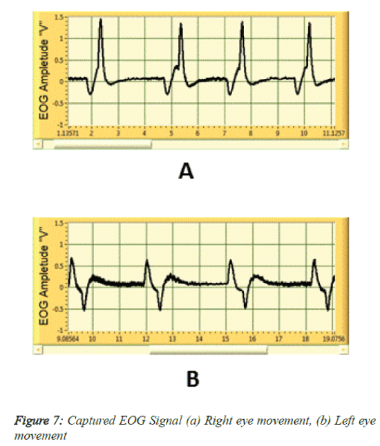 biomedres-Captured-EOG-Signal