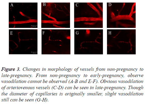 biomedres-Changes-morphology-vessels