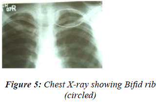 biomedres-Chest-X-ray-showing-Bifid-rib