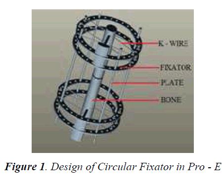 biomedres-Circular-Fixator