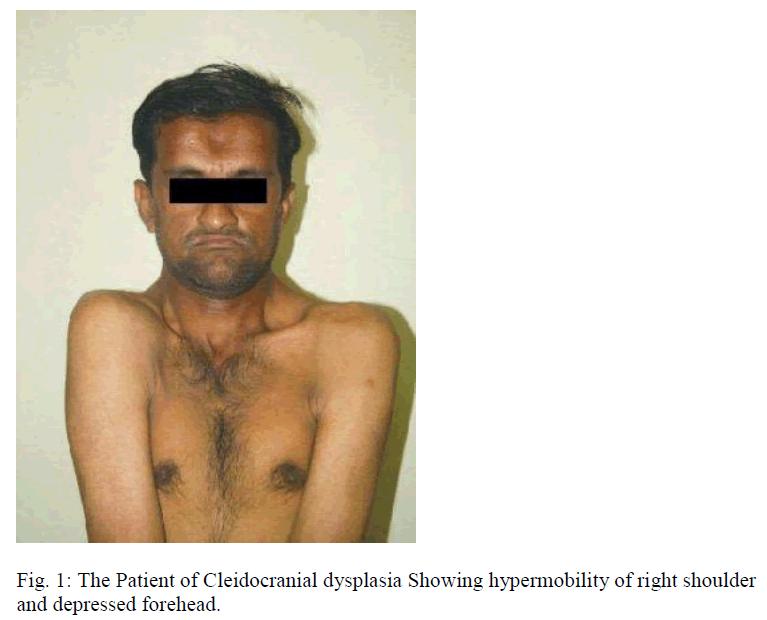 biomedres-Cleidocranial-dysplasia