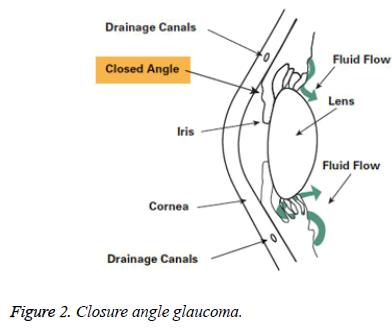 biomedres-Closure-angle