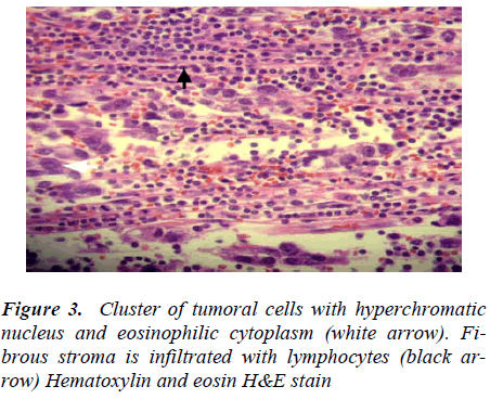 biomedres-Cluster-tumoral-cells-hyperchromatic