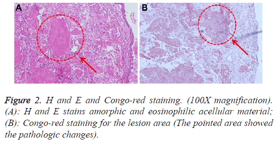 biomedres-Congo-red-staining