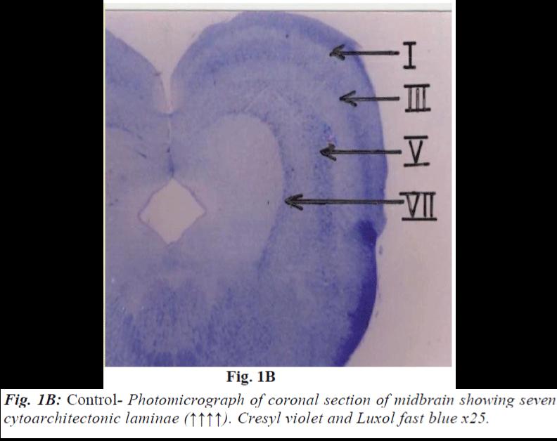 biomedres-Control-Photomicrograph-coronal