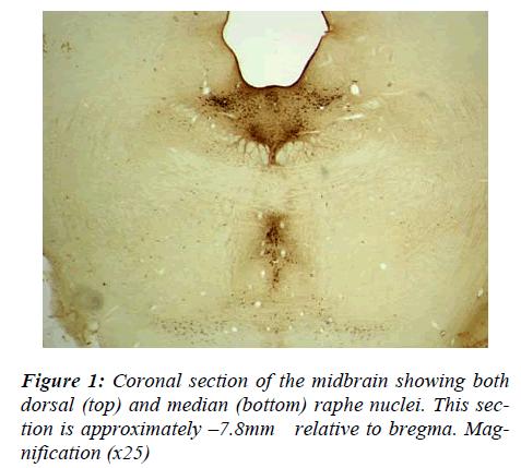 biomedres-Coronal-midbrain-dorsal