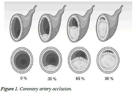 biomedres-Coronary-artery