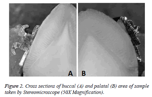 biomedres-Cross-sections-buccal