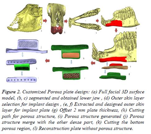 biomedres-Customized-Porous