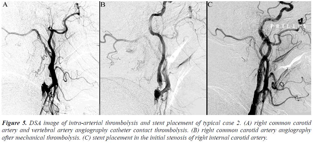 biomedres-DSA-image-intra-arterial