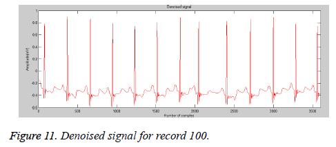 biomedres-Denoised-signal