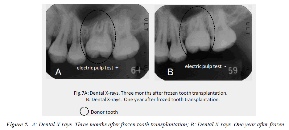 biomedres-Dental-X-rays-frozen-tooth