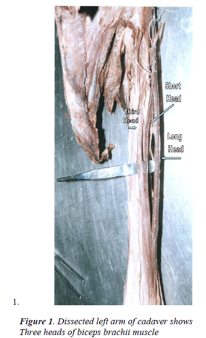 biomedres-Dissected-left-arm-cadaver