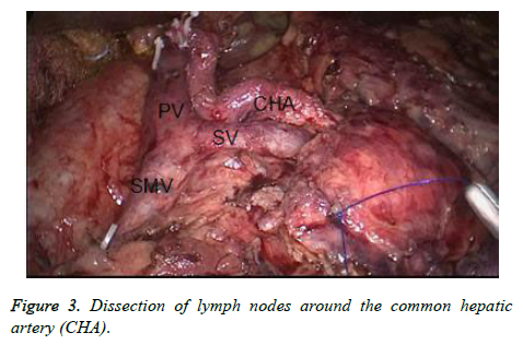 biomedres-Dissection-lymph-nodes