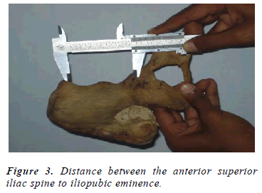 biomedres-Distance-iliopubic-eminence