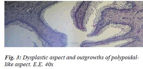 biomedres-Dysplastic-aspect