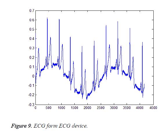 biomedres-ECG-device